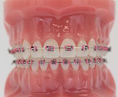Edmonds Braces Treatments Edmonds Orthodontics