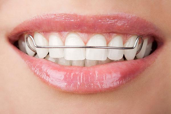 edmonds braces